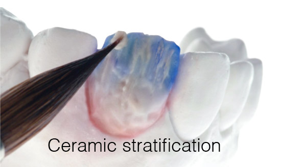 ceramic-stratification